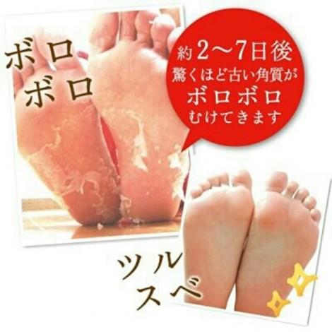 Baby Foot - Deep Exfoliation For Feet peel