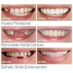Livionex Dental Gel