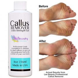 Callus Remover Extra Strength Gel for Feet