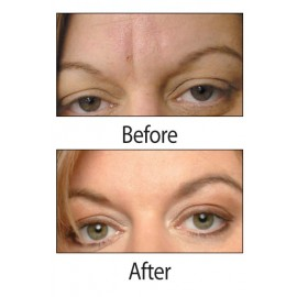 Facial Patches for Wrinkles on the Forehead & Between Eyes