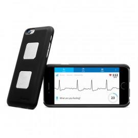 Kardia Mobile - EKG Analysis