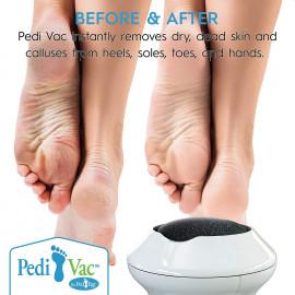 Pedi Vac by Ped Egg