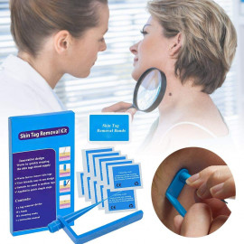 TagBand Skin Tag Remover Device