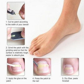 Dr. Scholls Ingrown Toenail Pain Reliever