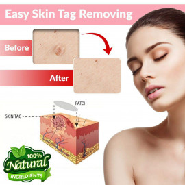 Greenland Products Skin Tag & Acne Remover Patches