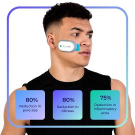 LUSTRE ClearSkin SOLO - Blue Light Acne Treatment