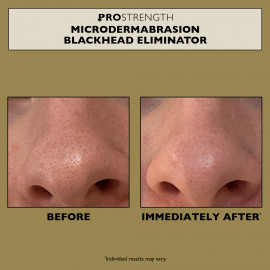 PRO Strength Microdermabrasion Blackhead Eliminator