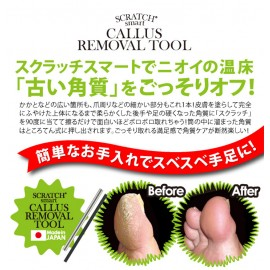 Scratch Smart - Callus Removal
